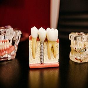 cosmetic dentist mosman